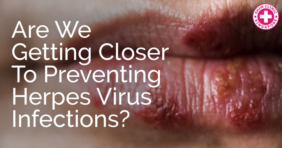 Are We Getting Closer to Preventing Herpes Virus Infections?