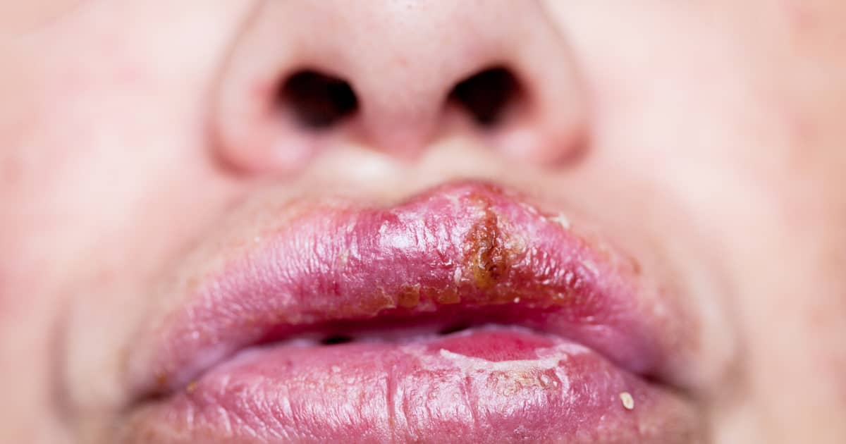 Is It Possible to Get Genital Herpes from Oral Herpes?