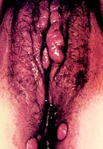 Warts - on female sex organ