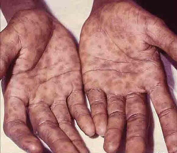 Syphilis - skin rash